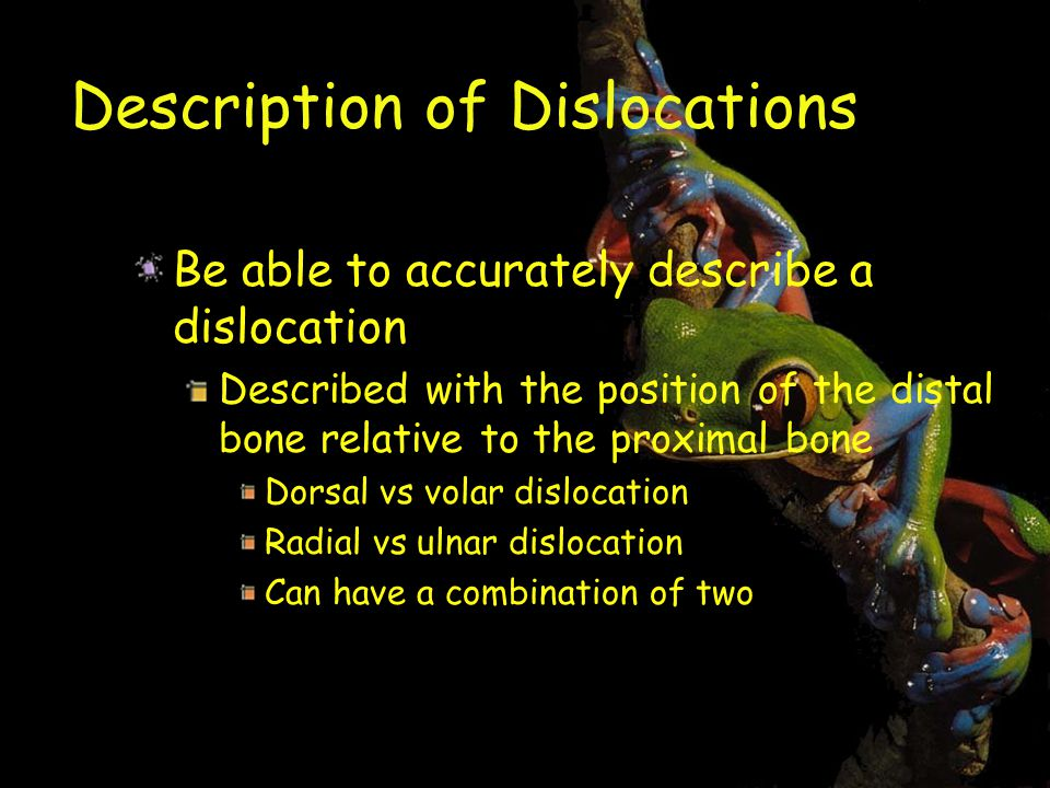 Description of Dislocations Be able to accurately describe a dislocation Described with the position of the distal bone relative to the proximal bone Dorsal vs volar dislocation Radial vs ulnar dislocation Can have a combination of two