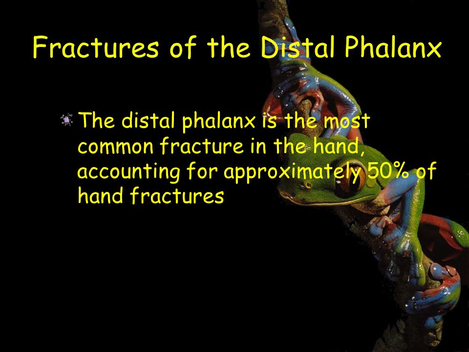 Fractures of the Distal Phalanx The distal phalanx is the most common fracture in the hand, accounting for approximately 50% of hand fractures