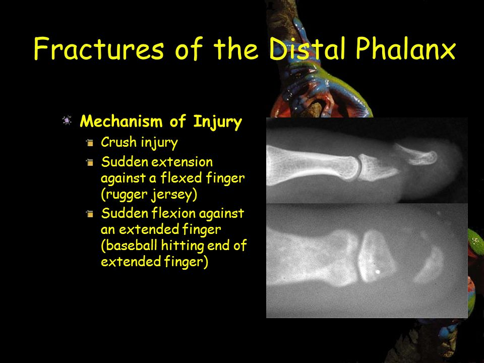 Fractures of the Distal Phalanx Mechanism of Injury Crush injury Sudden extension against a flexed finger (rugger jersey) Sudden flexion against an extended finger (baseball hitting end of extended finger)