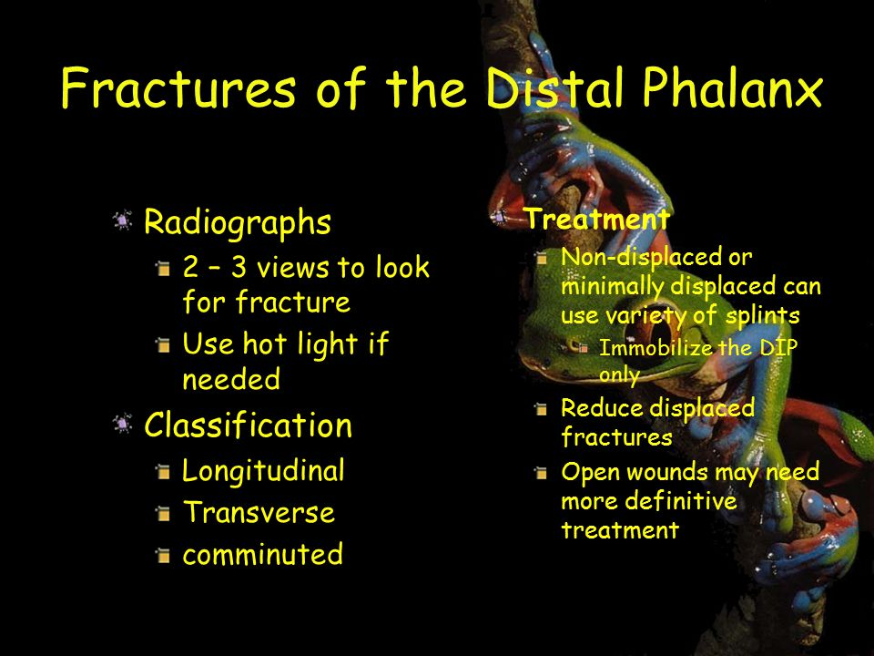Fractures of the Distal Phalanx Radiographs 2 – 3 views to look for fracture Use hot light if needed Classification Longitudinal Transverse comminuted Treatment Non-displaced or minimally displaced can use variety of splints Immobilize the DIP only Reduce displaced fractures Open wounds may need more definitive treatment