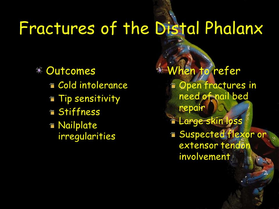 Fractures of the Distal Phalanx Outcomes Cold intolerance Tip sensitivity Stiffness Nailplate irregularities When to refer Open fractures in need of nail bed repair Large skin loss Suspected flexor or extensor tendon involvement