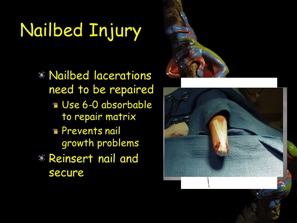 Nailbed Injury Nailbed lacerations need to be repaired Use 6-0 absorbable to repair matrix Prevents nail growth problems Reinsert nail and secure