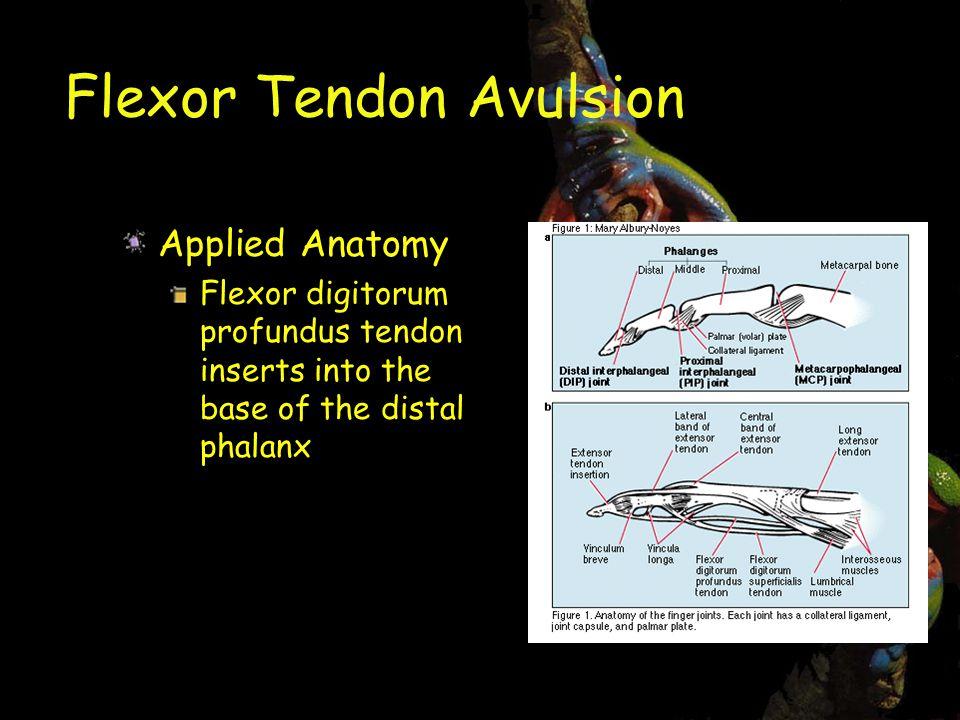 Flexor Tendon Avulsion Applied Anatomy Flexor digitorum profundus tendon inserts into the base of the distal phalanx