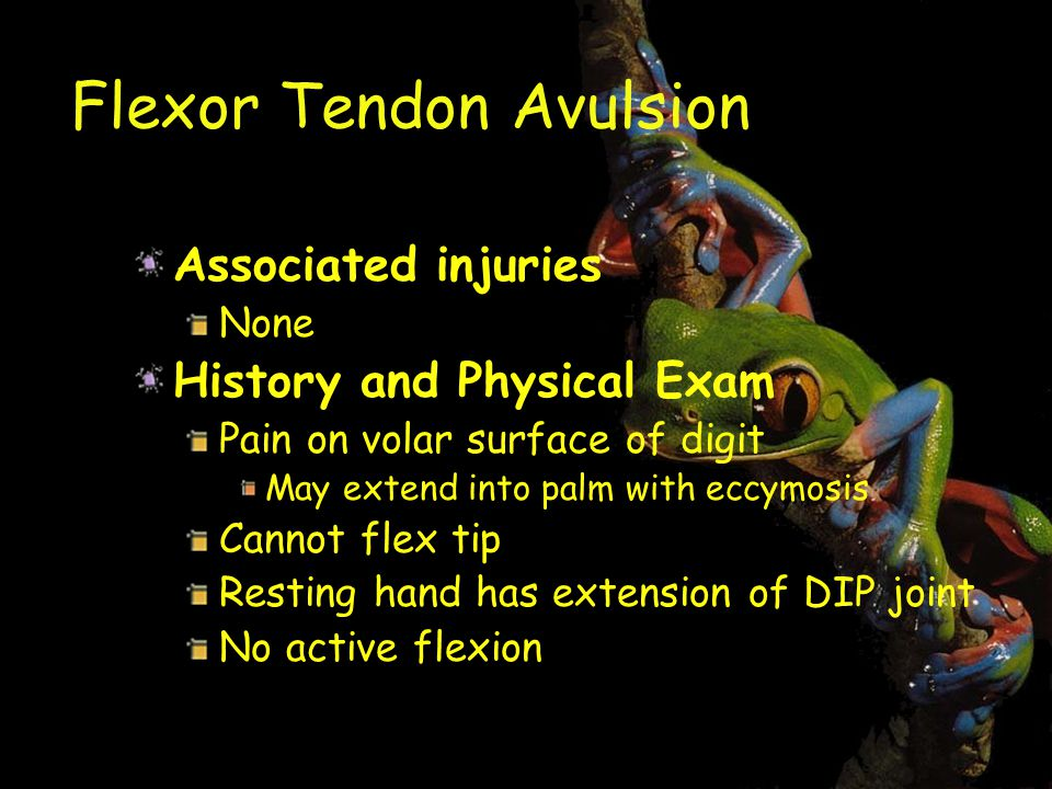 Flexor Tendon Avulsion Associated injuries None History and Physical Exam Pain on volar surface of digit May extend into palm with eccymosis Cannot flex tip Resting hand has extension of DIP joint No active flexion