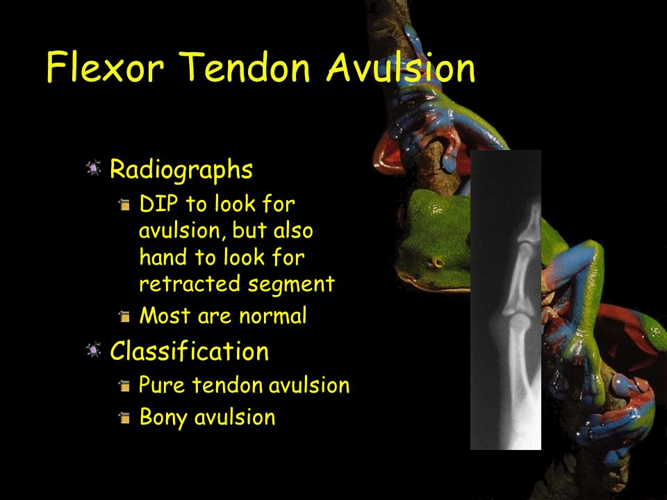 Flexor Tendon Avulsion Radiographs DIP to look for avulsion, but also hand to look for retracted segment Most are normal Classification Pure tendon avulsion Bony avulsion