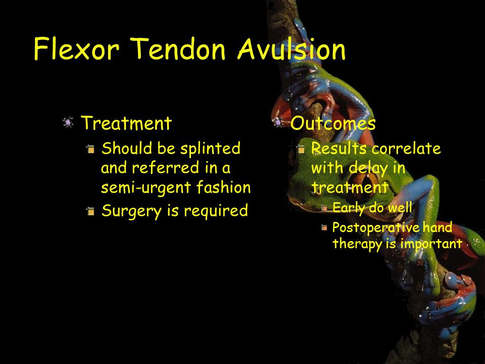 Flexor Tendon Avulsion Treatment Should be splinted and referred in a semi-urgent fashion Surgery is required Outcomes Results correlate with delay in treatment Early do well Postoperative hand therapy is important