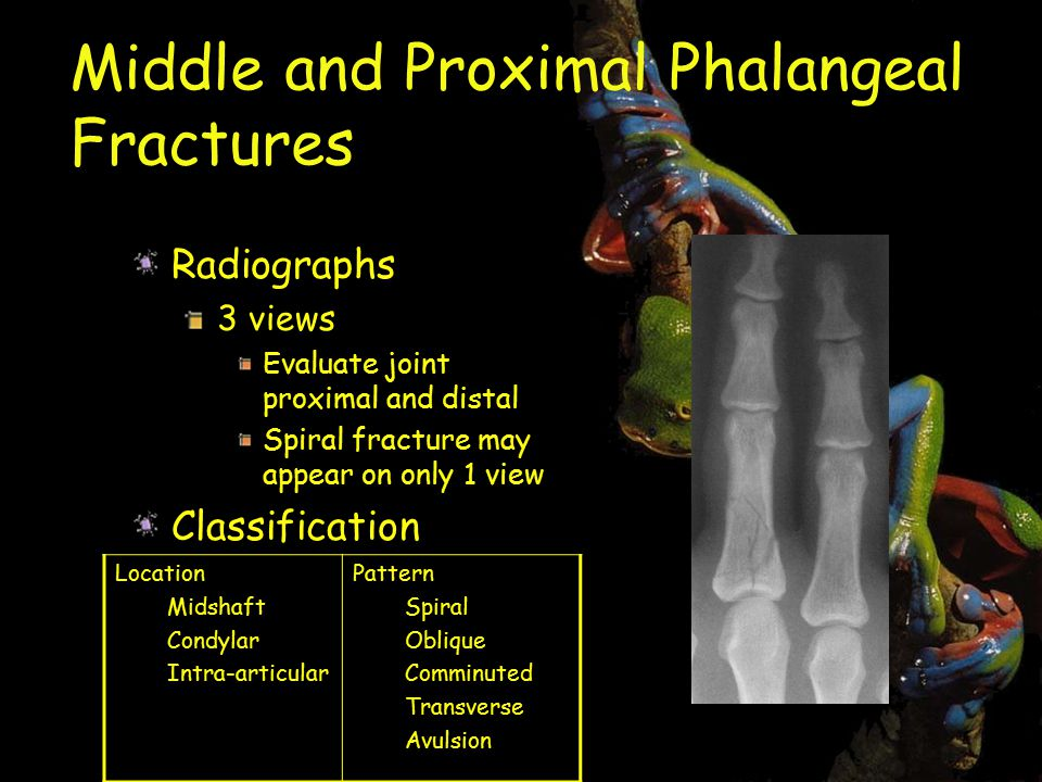 Middle and Proximal Phalangeal Fractures Radiographs 3 views Evaluate joint proximal and distal Spiral fracture may appear on only 1 view Classification Location Midshaft Condylar Intra-articular Pattern Spiral Oblique Comminuted Transverse Avulsion