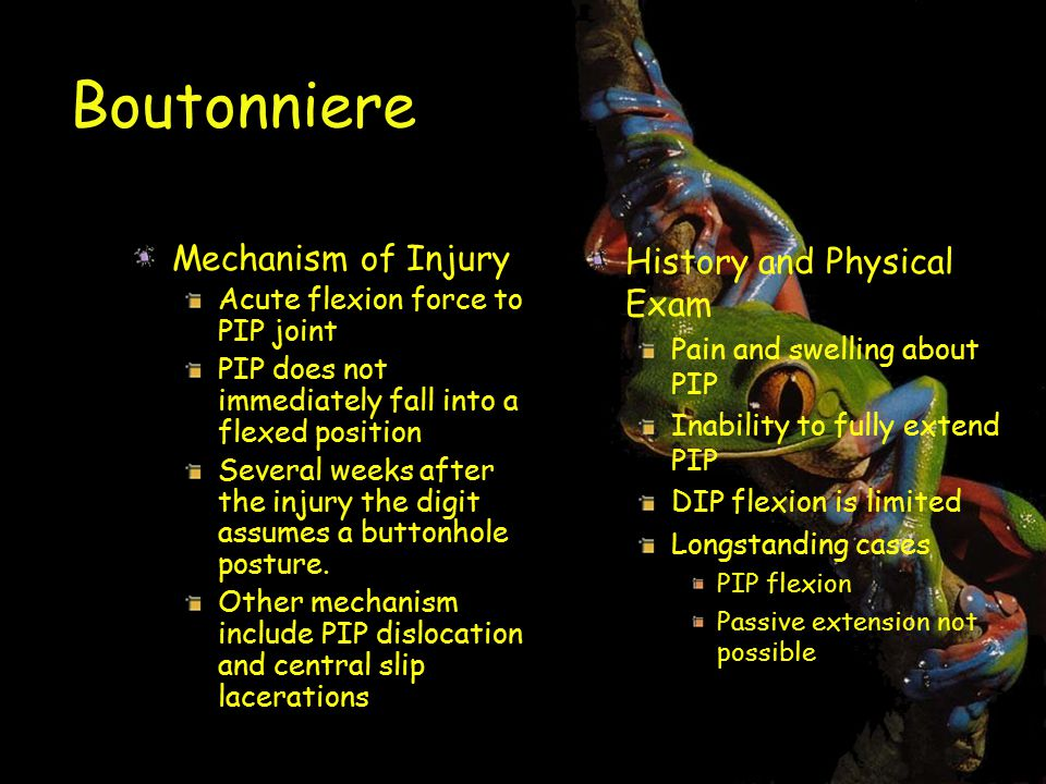 Boutonniere Mechanism of Injury Acute flexion force to PIP joint PIP does not immediately fall into a flexed position Several weeks after the injury the digit assumes a buttonhole posture.