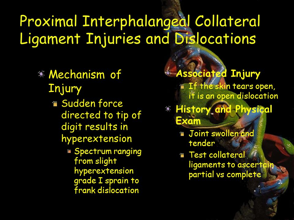 Proximal Interphalangeal Collateral Ligament Injuries and Dislocations Mechanism of Injury Sudden force directed to tip of digit results in hyperextension Spectrum ranging from slight hyperextension grade I sprain to frank dislocation Associated Injury If the skin tears open, it is an open dislocation History and Physical Exam Joint swollen and tender Test collateral ligaments to ascertain partial vs complete