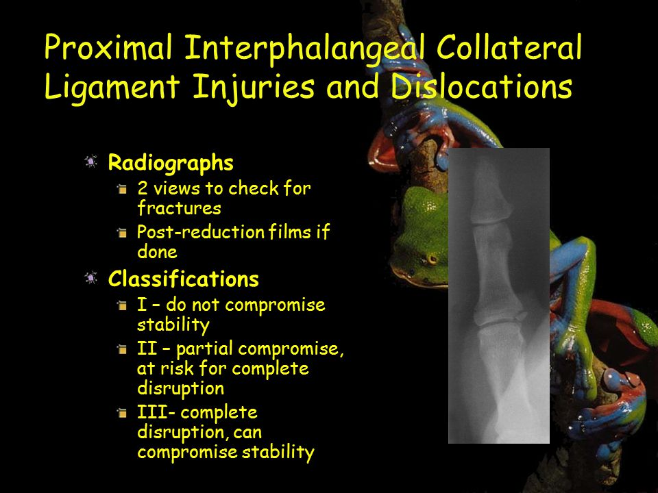 Proximal Interphalangeal Collateral Ligament Injuries and Dislocations Radiographs 2 views to check for fractures Post-reduction films if done Classifications I – do not compromise stability II – partial compromise, at risk for complete disruption III- complete disruption, can compromise stability