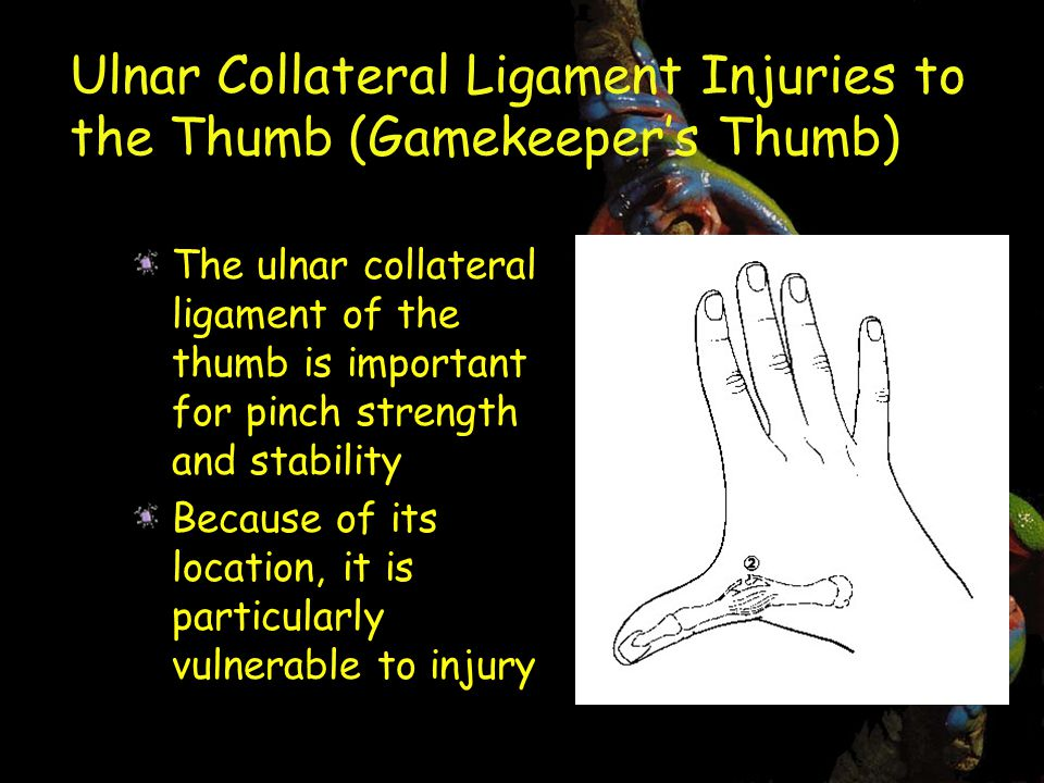 Ulnar Collateral Ligament Injuries to the Thumb (Gamekeeper's Thumb) The ulnar collateral ligament of the thumb is important for pinch strength and stability Because of its location, it is particularly vulnerable to injury