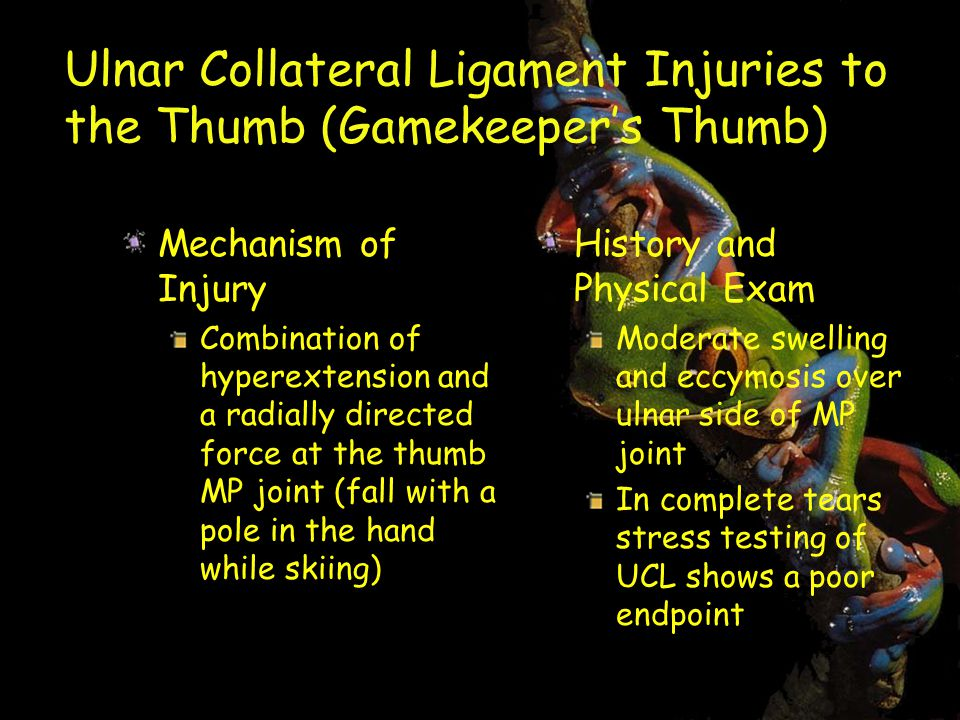 Ulnar Collateral Ligament Injuries to the Thumb (Gamekeeper's Thumb) Mechanism of Injury Combination of hyperextension and a radially directed force at the thumb MP joint (fall with a pole in the hand while skiing) History and Physical Exam Moderate swelling and eccymosis over ulnar side of MP joint In complete tears stress testing of UCL shows a poor endpoint