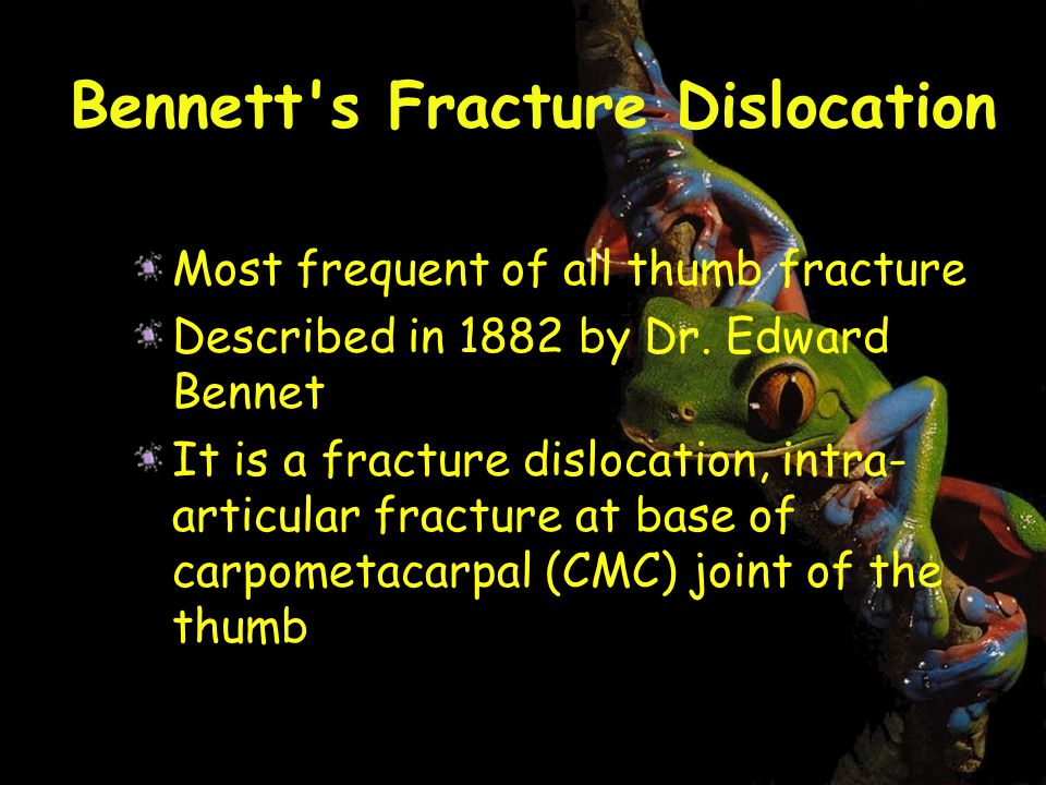 Bennett s Fracture Dislocation Most frequent of all thumb fracture Described in 1882 by Dr.