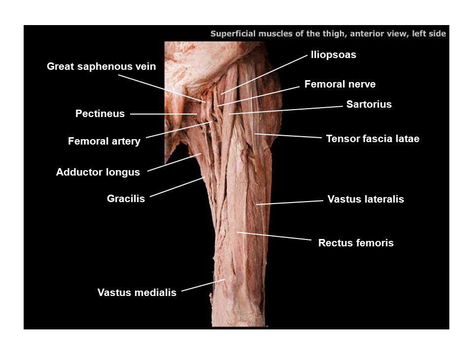 Iliopsoas Great saphenous vein Pectineus Femoral artery Adductor longus Gracilis Vastus medialis Rectus femoris Vastus lateralis Tensor fascia latae F