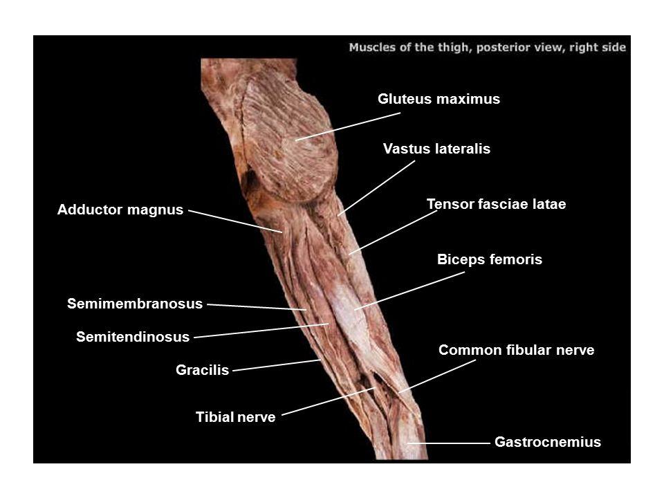 Gluteus maximus Vastus lateralis Semitendinosus Tensor fasciae latae Biceps femoris Gracilis Common fibular nerve Gastrocnemius Tibial nerve Semimembr