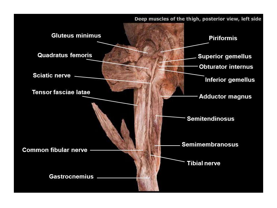 Gluteus minimus Quadratus femoris Sciatic nerve Tensor fasciae latae Common fibular nerve Tibial nerve Semimembranosus Semitendinosus Adductor magnus