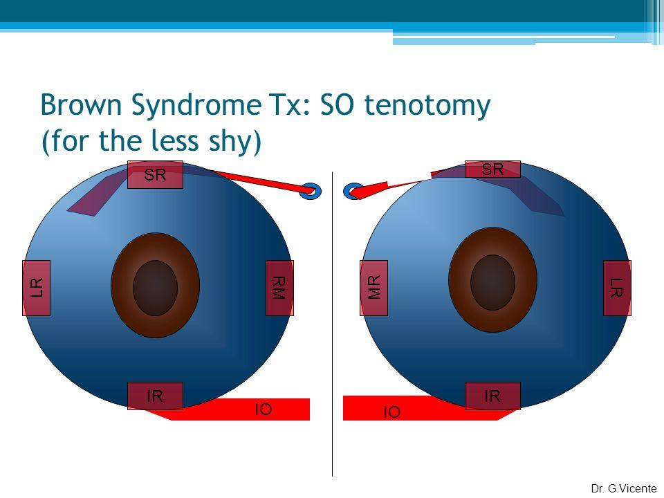 Brown Syndrome Tx: SO tenotomy (for the less shy) SR MR LR IR SR LR RM IR IO Dr. G.Vicente