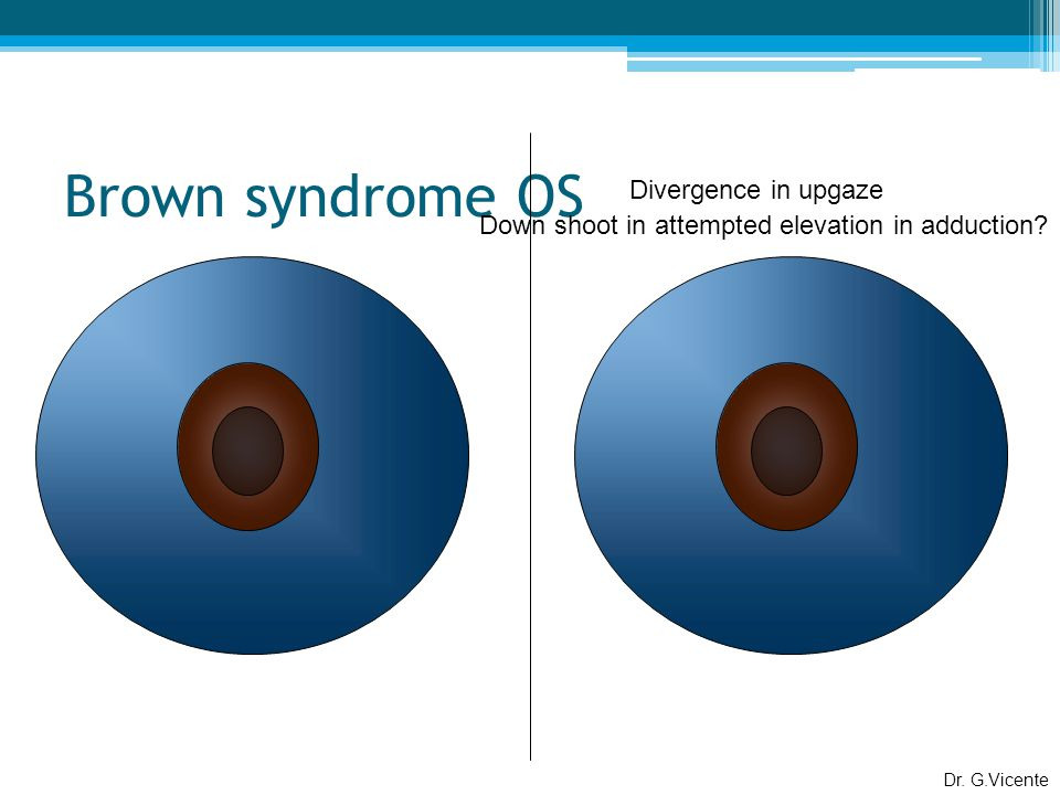 Brown syndrome OS Dr.