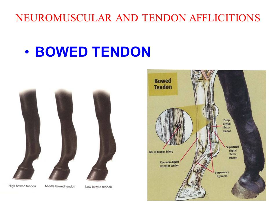 NEUROMUSCULAR AND TENDON AFFLICITIONS BOWED TENDON