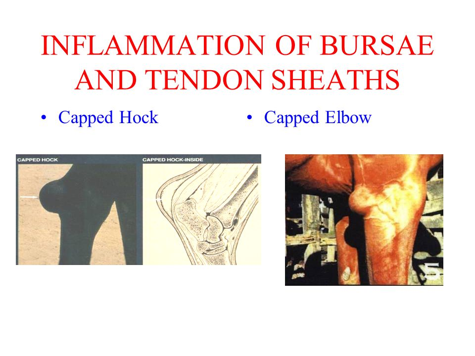 INFLAMMATION OF BURSAE AND TENDON SHEATHS Capped HockCapped Elbow
