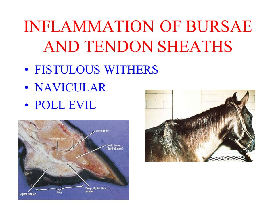 FISTULOUS WITHERS NAVICULAR POLL EVIL INFLAMMATION OF BURSAE AND TENDON SHEATHS