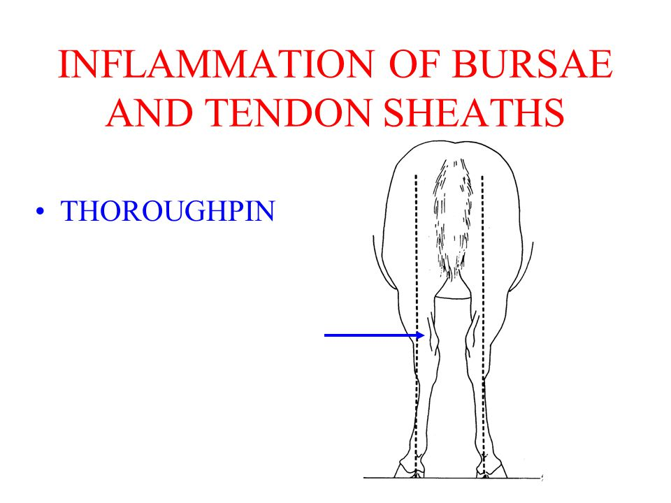 THOROUGHPIN INFLAMMATION OF BURSAE AND TENDON SHEATHS