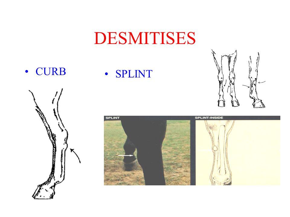 DESMITISES CURB SPLINT