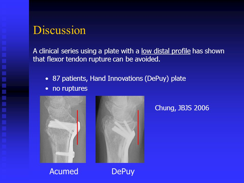 Discussion A clinical series using a plate with a low distal profile has shown that flexor tendon rupture can be avoided.