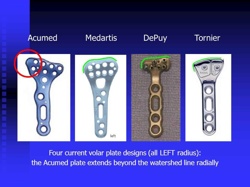 Four current volar plate designs (all LEFT radius): the Acumed plate extends beyond the watershed line radially AcumedMedartisTornierDePuy