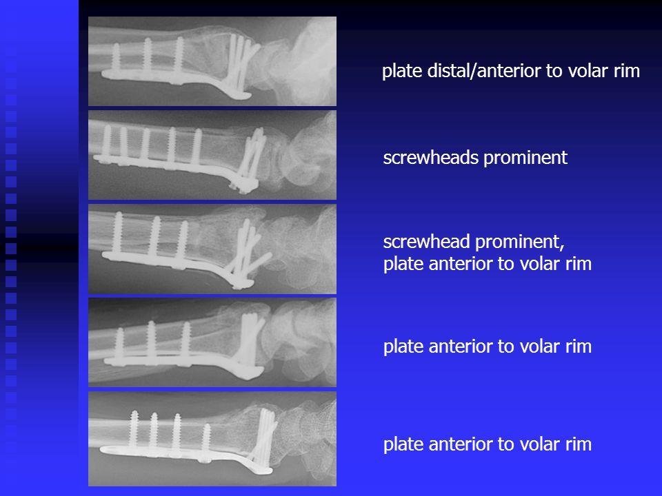 plate distal/anterior to volar rim screwheads prominent screwhead prominent, plate anterior to volar rim plate anterior to volar rim