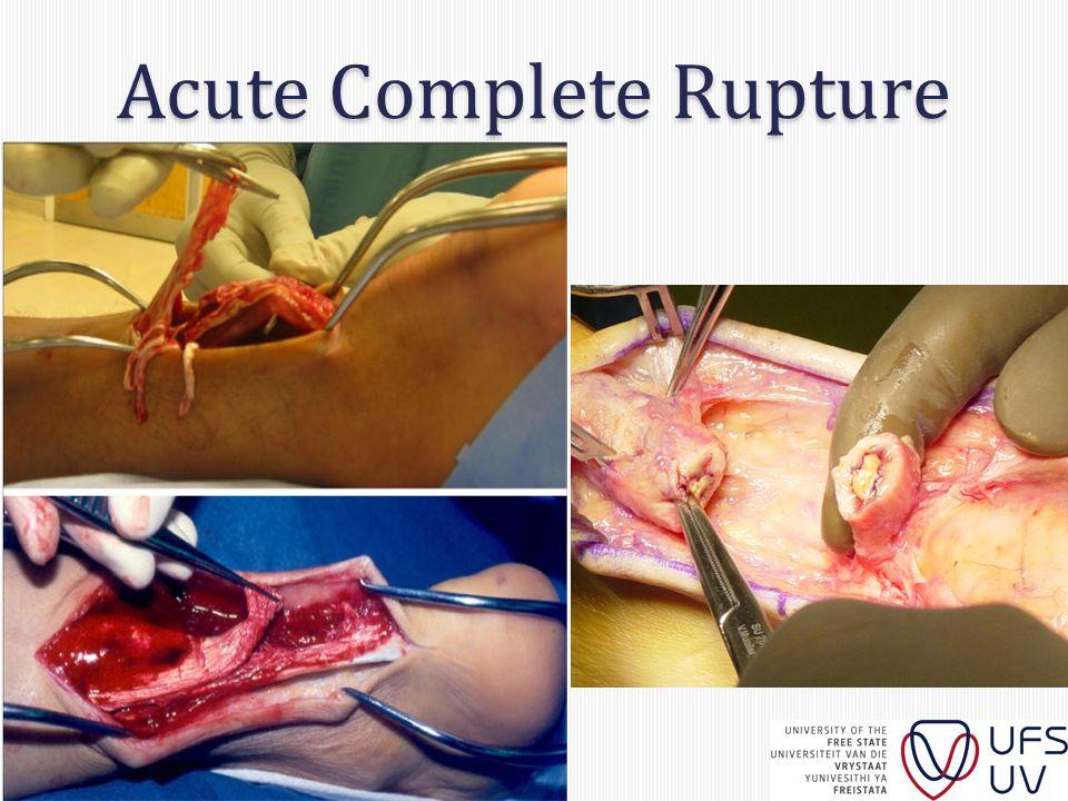 Acute Complete Rupture