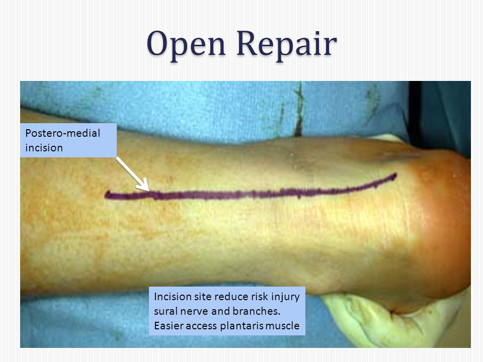 Open Repair Incision site reduce risk injury sural nerve and branches.