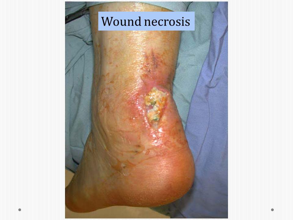 Wound necrosis