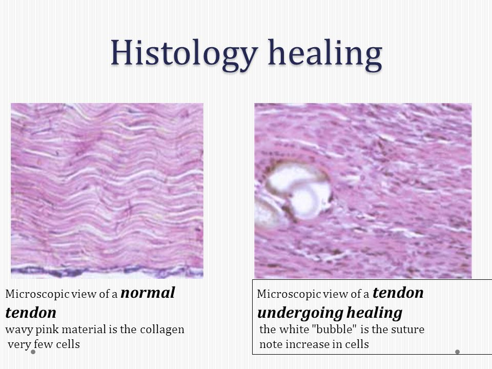 Histology healing Microscopic view of a tendon undergoing healing the white bubble is the suture note increase in cells Microscopic view of a normal tendon wavy pink material is the collagen very few cells