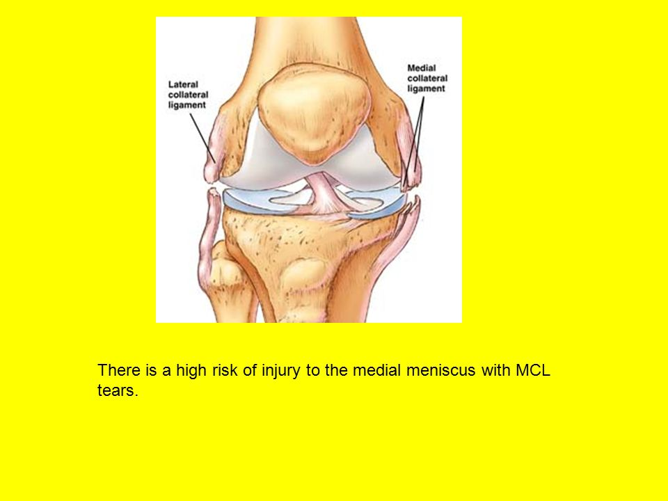 There is a high risk of injury to the medial meniscus with MCL tears.