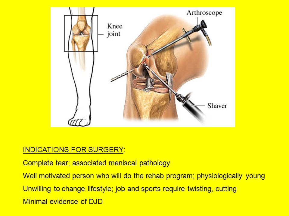 INDICATIONS FOR SURGERY: Complete tear; associated meniscal pathology Well motivated person who will do the rehab program; physiologically young Unwilling to change lifestyle; job and sports require twisting, cutting Minimal evidence of DJD
