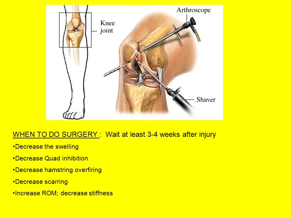 SURGERIES PERFORMED 1.Bone-tendon-bone with middle 1/3 of patellar tendon 2.Semitendinosis and gracilis: fold them in ½ so have a 4 tendon bundle 3.Allograph: bone-tendon-bone patellar tendon from cadaver Key in surgery is correct isometric placement of the graph.