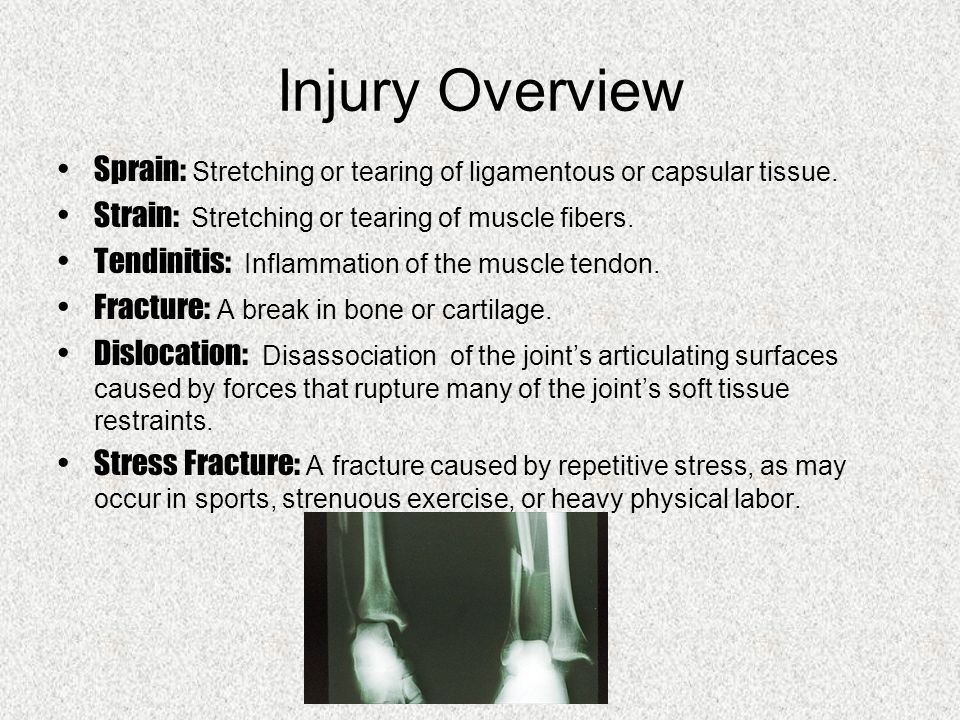 Injury Overview Sprain: Stretching or tearing of ligamentous or capsular tissue.