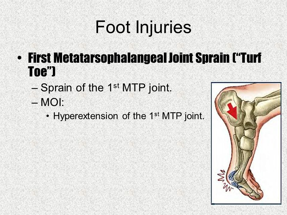 Foot Injuries First Metatarsophalangeal Joint Sprain ( Turf Toe ) –Sprain of the 1 st MTP joint.