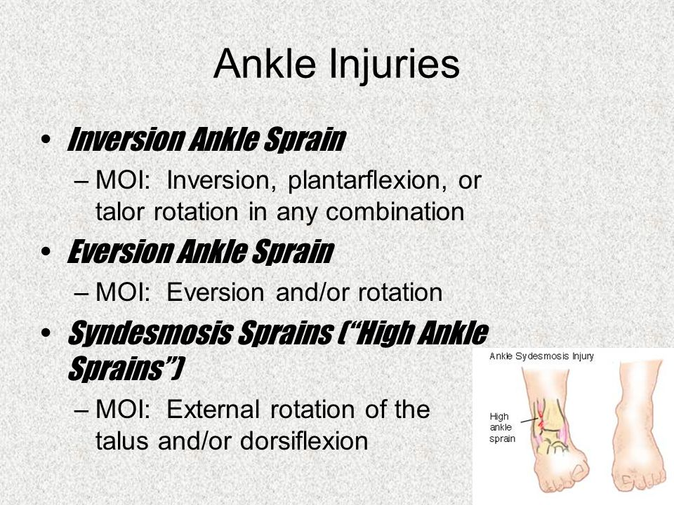 Ankle Injuries Inversion Ankle Sprain –MOI: Inversion, plantarflexion, or talor rotation in any combination Eversion Ankle Sprain –MOI: Eversion and/or rotation Syndesmosis Sprains ( High Ankle Sprains ) –MOI: External rotation of the talus and/or dorsiflexion