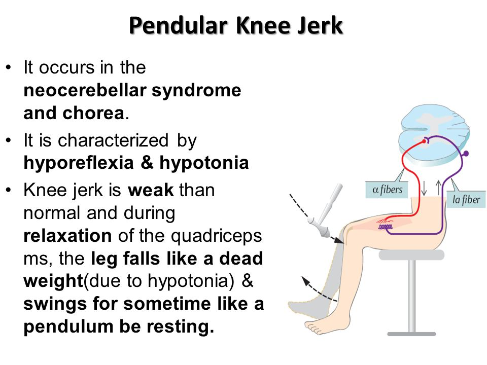 Pendular Knee Jerk It occurs in the neocerebellar syndrome and chorea. It is characterized by hyporeflexia & hypotonia Knee jerk is weak than normal a