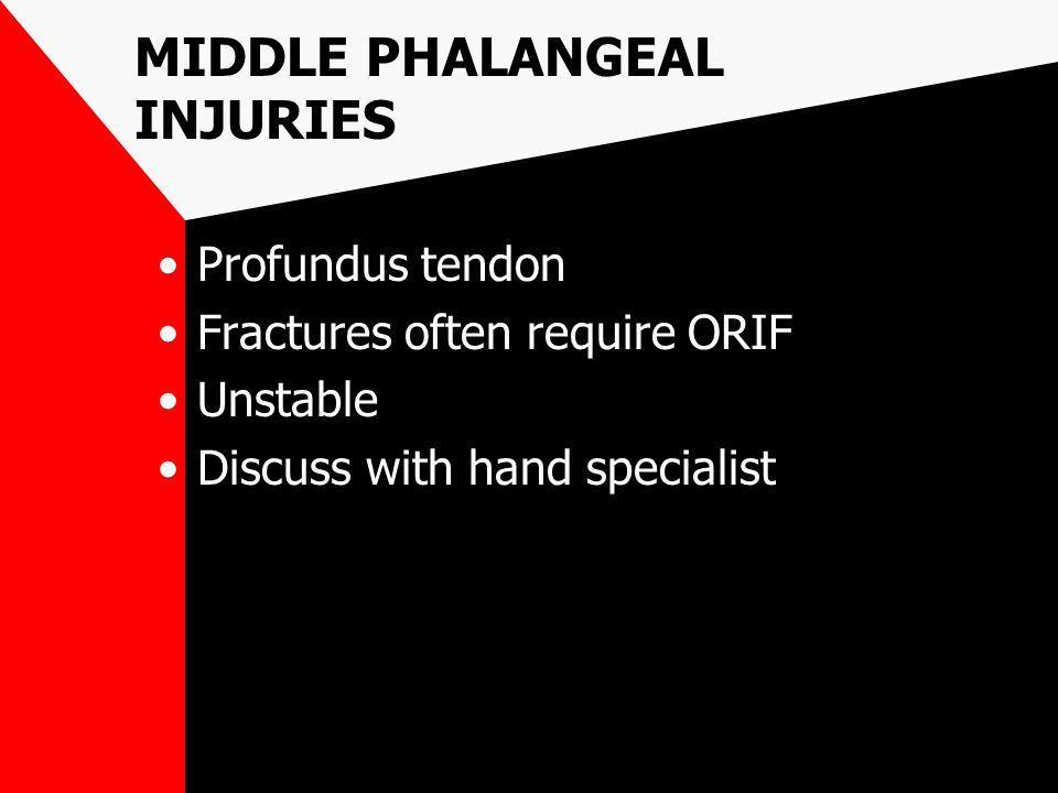 MIDDLE PHALANGEAL INJURIES Profundus tendon Fractures often require ORIF Unstable Discuss with hand specialist