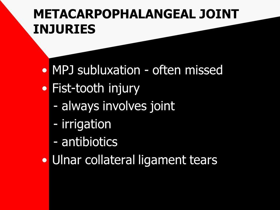METACARPOPHALANGEAL JOINT INJURIES MPJ subluxation - often missed Fist-tooth injury - always involves joint - irrigation - antibiotics Ulnar collatera