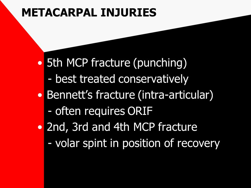 METACARPAL INJURIES 5th MCP fracture (punching) - best treated conservatively Bennett's fracture (intra-articular) - often requires ORIF 2nd, 3rd and