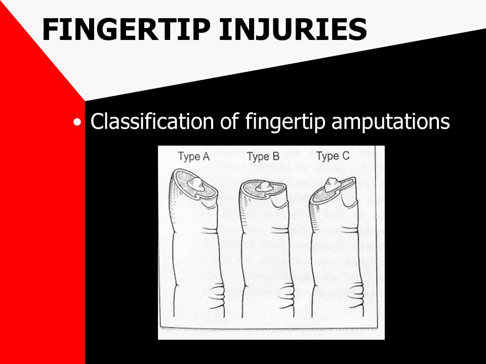 FINGERTIP INJURIES Classification of fingertip amputations
