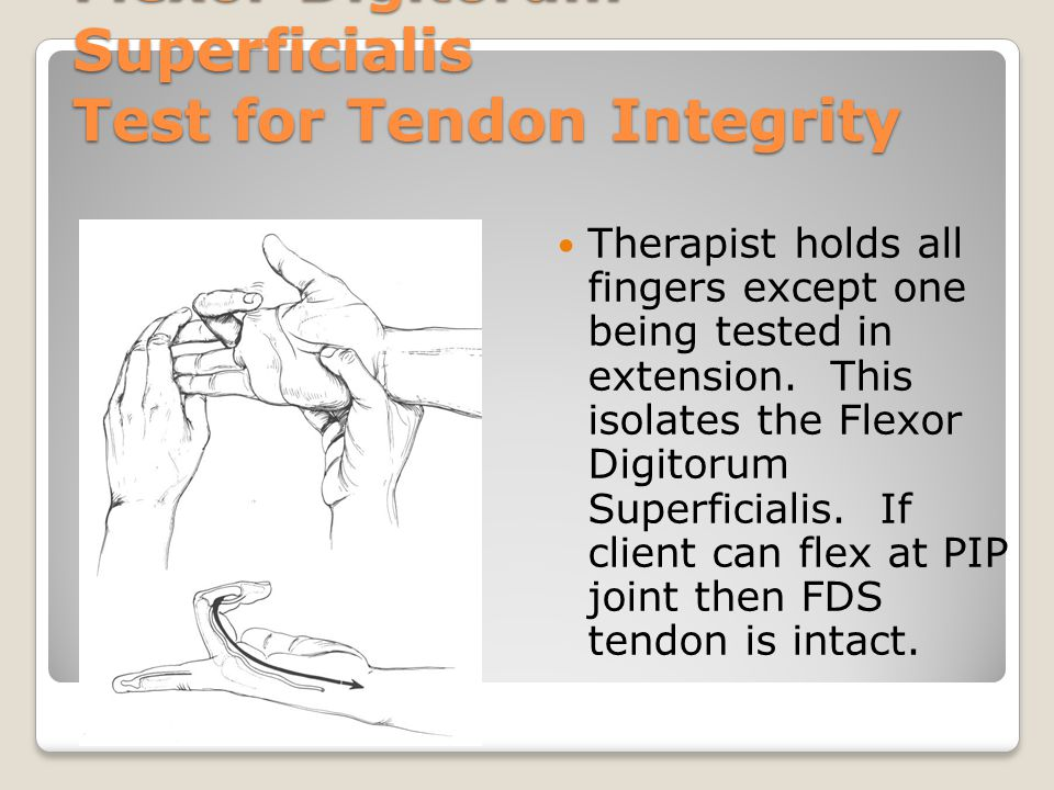Flexor Digitorum Superficialis Test for Tendon Integrity Therapist holds all fingers except one being tested in extension. This isolates the Flexor Di