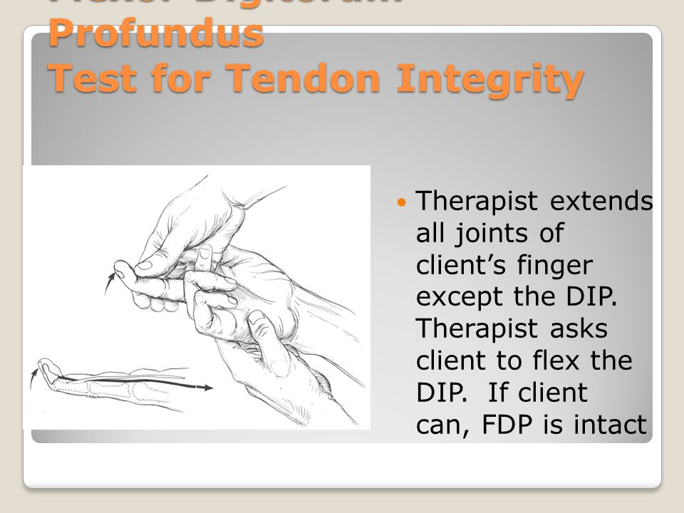 Flexor Digitorum Profundus Test for Tendon Integrity Therapist extends all joints of client's finger except the DIP. Therapist asks client to flex the
