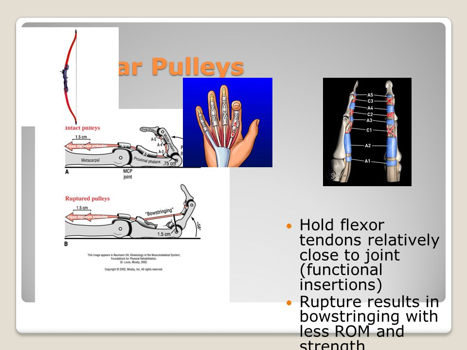 Annular Pulleys Hold flexor tendons relatively close to joint (functional insertions) Rupture results in bowstringing with less ROM and strength Trigg