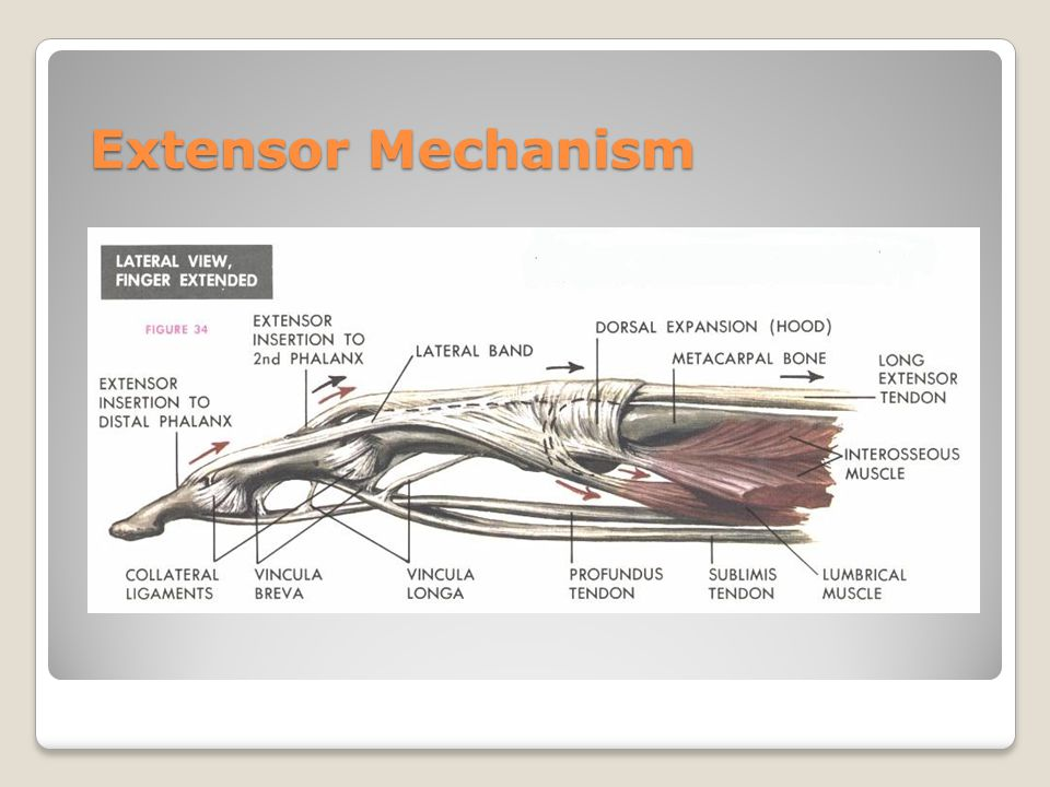 Extensor Mechanism Closed pack position MCP 70 degree s PIP/DI P extensi on