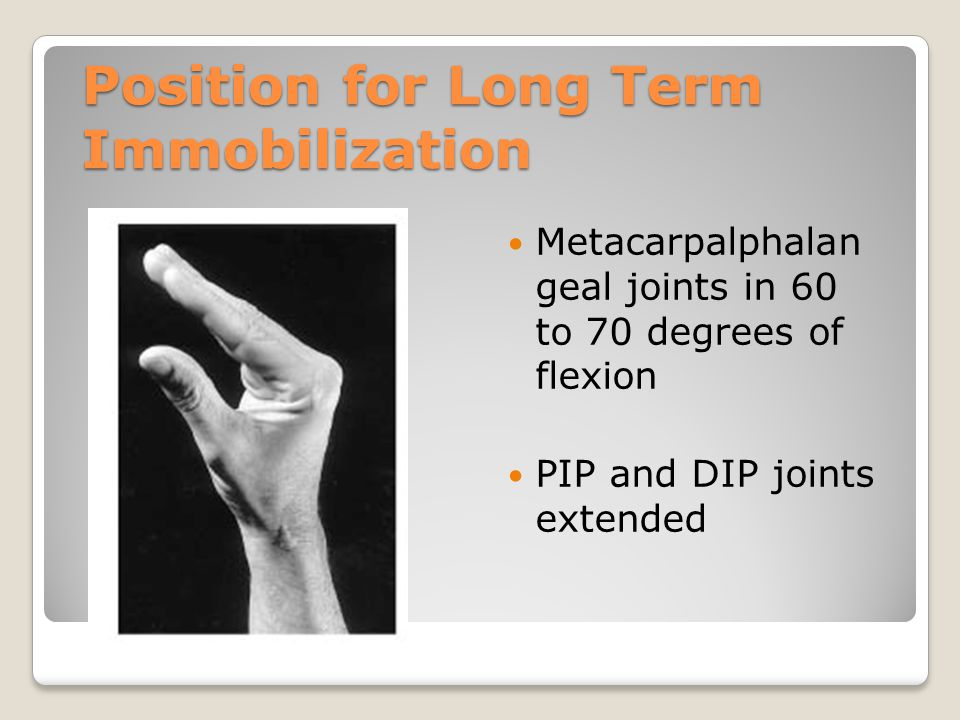 Position for Long Term Immobilization Metacarpalphalan geal joints in 60 to 70 degrees of flexion PIP and DIP joints extended